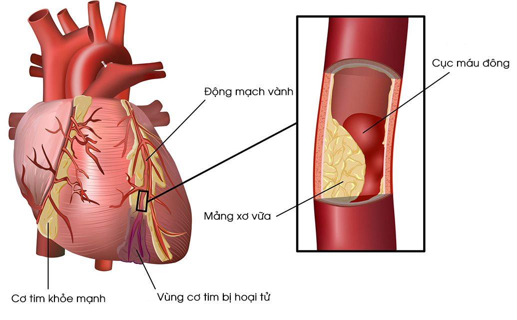 Bệnh mạch vành – Tổng quan từ nguyên nhân đến cách điều trị hiệu quả